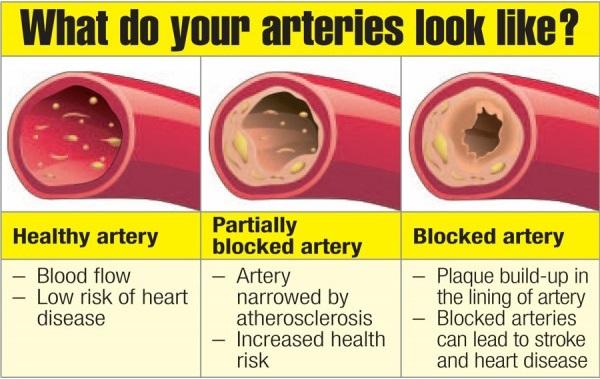 Fast Food Increase Heart Disease